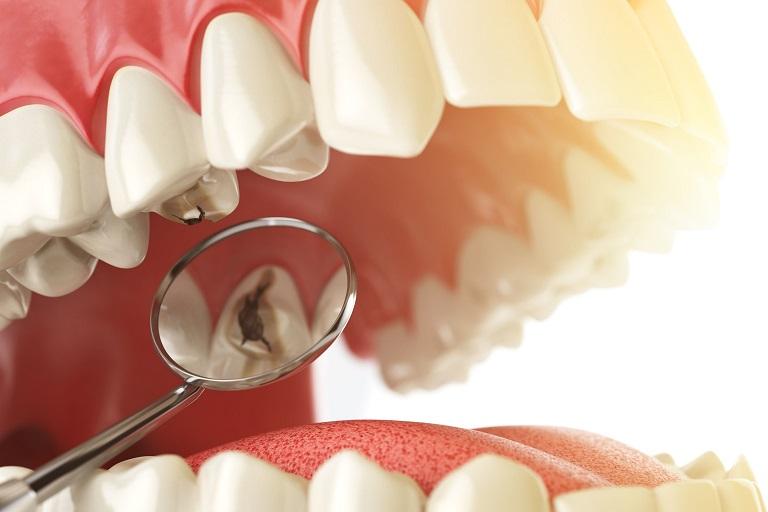 Sâu răng là bệnh lý nha khoa phổ biến có thể xảy ra ở bất cứ đối tượng nào