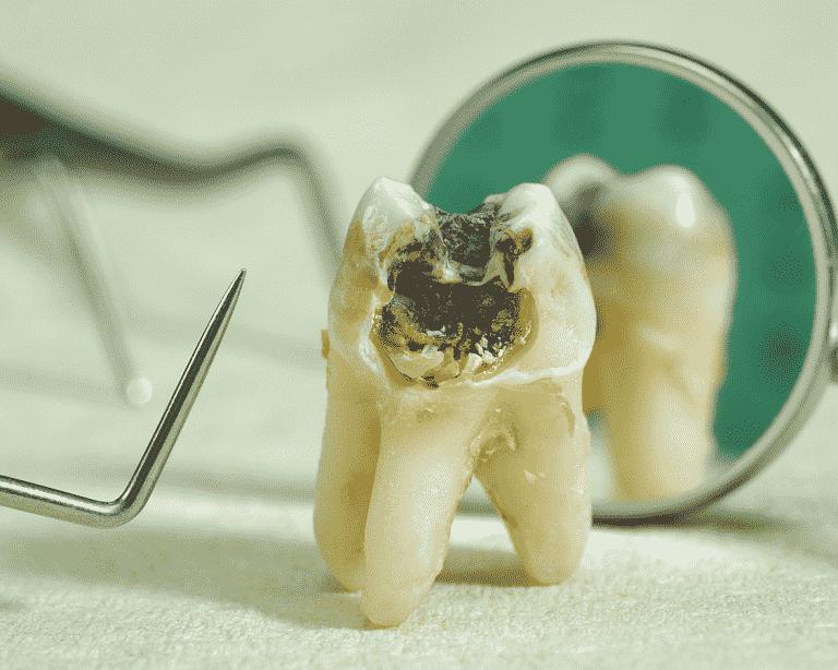 Vi khuẩn là nguyên nhân của bệnh sâu răng phổ biến nhất