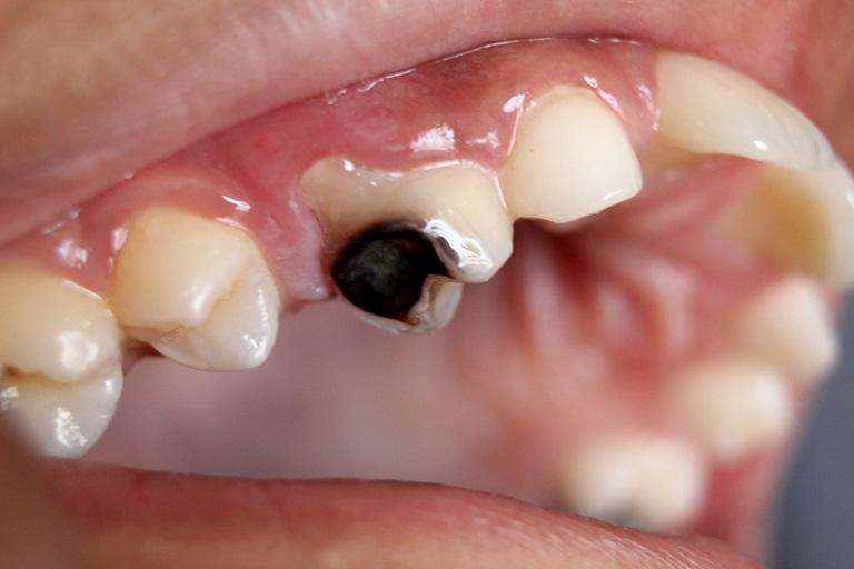 Bệnh có thể dẫn tới tình trạng nhiễm trùng các mô xung quanh