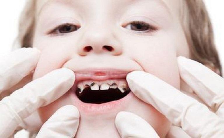Sâu răng trẻ em là hiện tượng vi khuẩn tấn công khiến cho men răng bị tác động