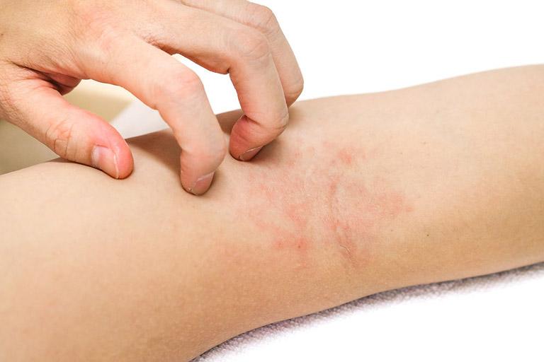 Triệu chứng viêm da cơ địa ở người lớn