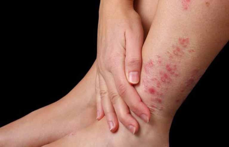 Biến chứng của bệnh viêm da cơ địa ở người lớn