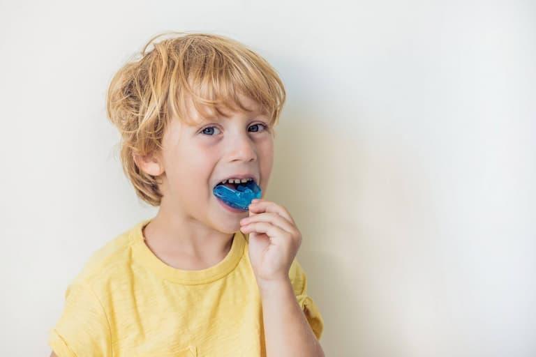 Hàm trainer có thể giúp bé điều chỉnh hàm răng đang trong thời kỳ phát triển