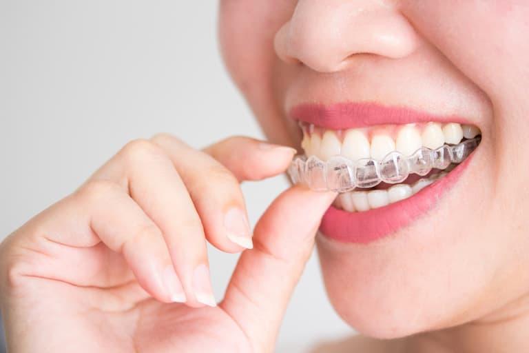 Niềng răng không mắc cài 3D Clear là sản phẩm thuần Việt đang nhận được sự quan tâm