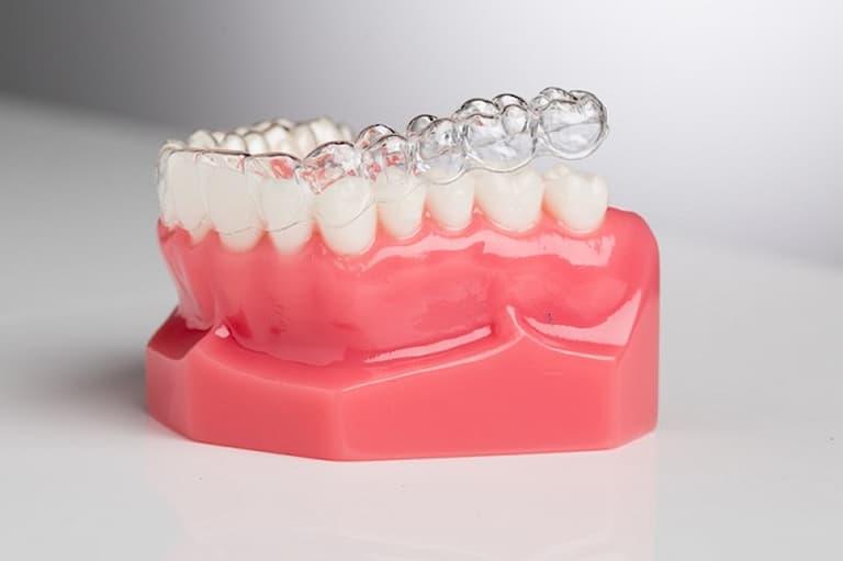 Niềng răng 3D Clear có tính thẩm mỹ cao