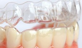 Niềng răng không mắc cài 3D Clear: Hiệu quả, quy trình và mức giá