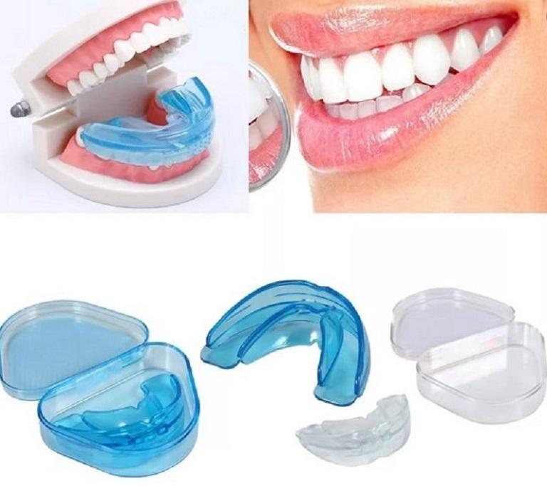 Niềng răng trainer là thiết bị chỉnh nha làm từ silicon được sử dụng khá phổ biến