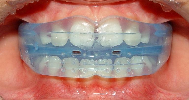 Niềng răng trainer nếu không cẩn thận cũng tiềm ẩn một số nguy cơ gây ảnh hưởng đến sức khỏe răng miệng