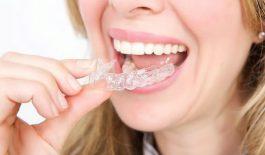 Niềng răng trainer cho người lớn là gì? Chi phí và những điều lưu ý