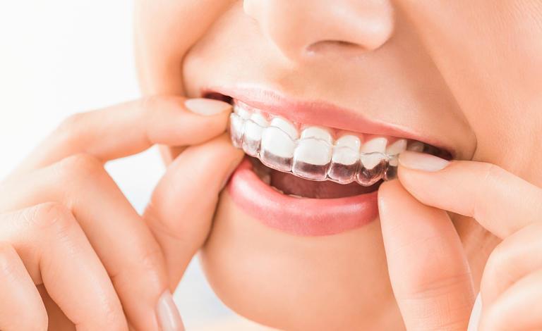 niềng răng vô hình Zenyum được sản xuất bằng công nghệ hiện đại