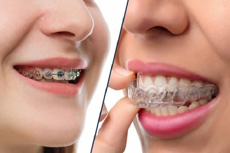 Niềng răng là phương pháp chỉnh nha được sử dụng phổ biến hiện nay