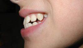 Răng hô nhẹ là gì? Các biện pháp khắc phục hiệu quả bạn nên biết