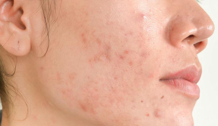 cách điều trị viêm da dị ứng ở mặt