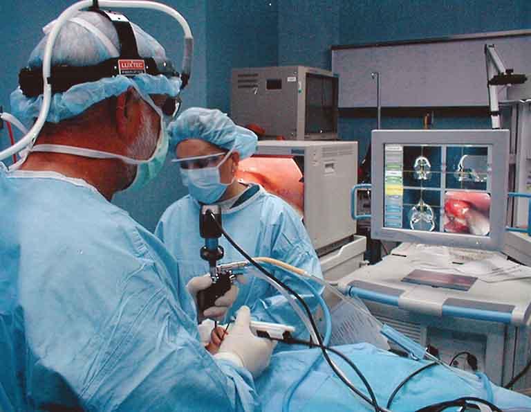 phẫu thuật điều trị viêm xoang mũi mãn tính