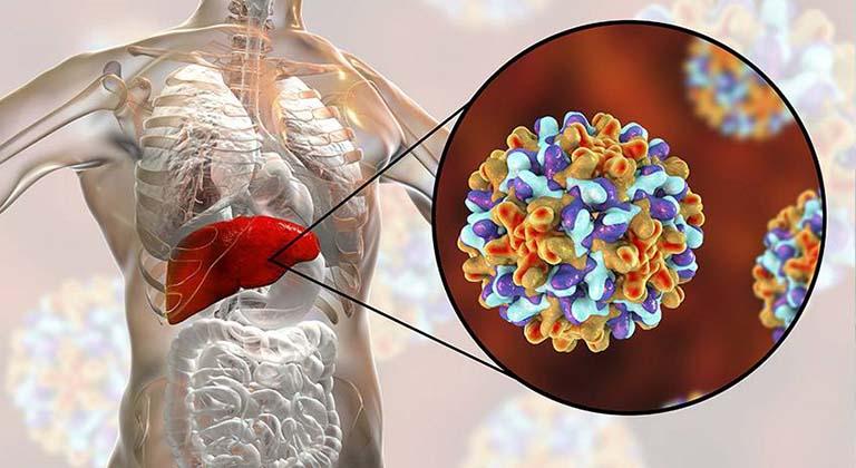 Bị viêm gan B mạn tính sống được bao lâu
