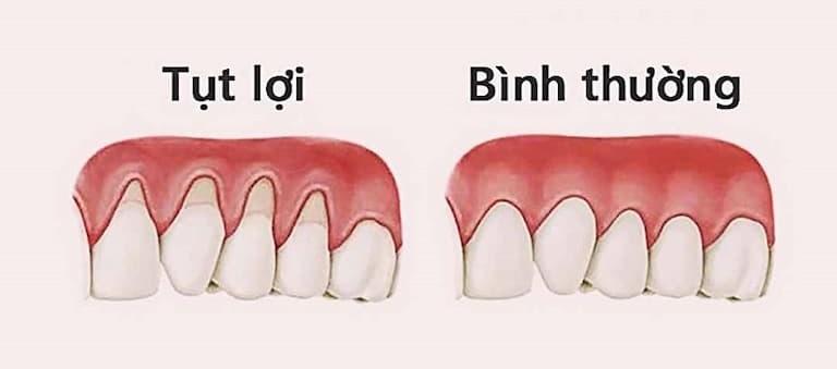 Tụt lợi gây ra nhiều ảnh hưởng nghiêm trọng với hàm răng