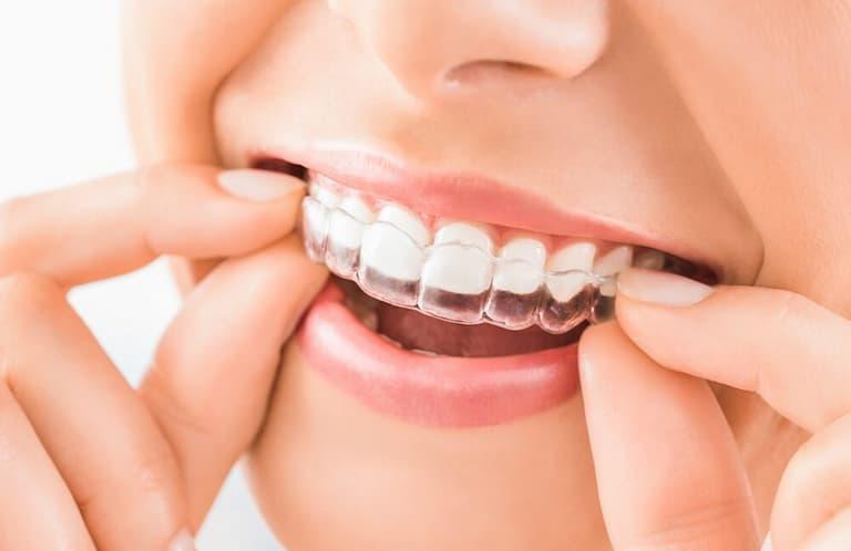 Niềng răng trong suốt giúp mọi người thoải mái trong các tiếp xúc thân mật như hôn môi