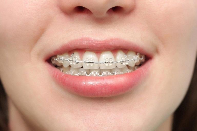 Đeo niềng răng có thể giúp mũi cao hơn