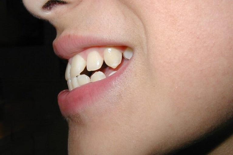 Hình ảnh răng hô nhẹ khi nhìn nghiêng thường rõ ràng hơn