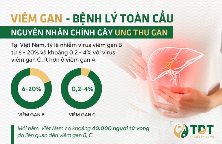 Viêm gan là bệnh lý nguy hiểm và phổ biến trên toàn thế giới